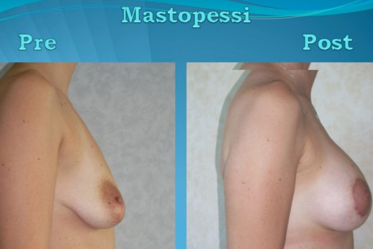 Mastopessi: informazioni utili per dire addio al seno cadente